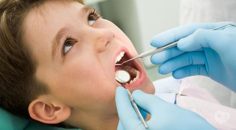 Сучасна Сімейна Стоматологія - Видалення молочного зуба