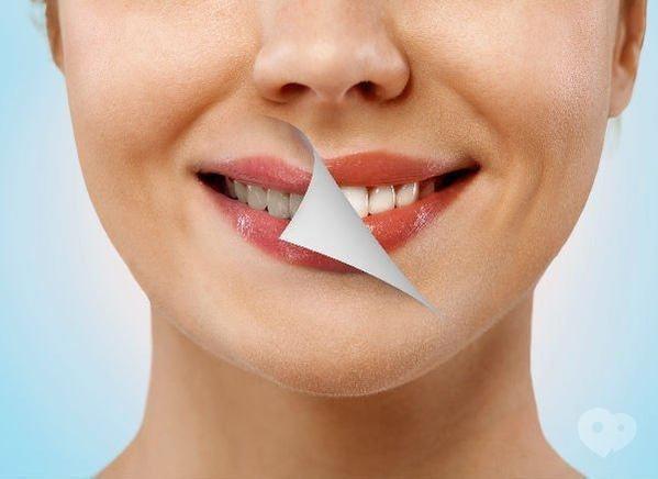 A2, стоматология - Отбеливание