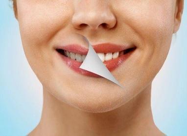 A2, стоматологія - Відбілювання
