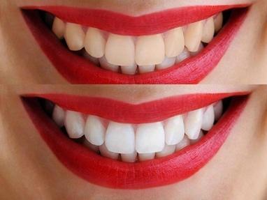 Сучасна Сімейна Стоматологія - Еко відбілювання зубів