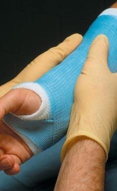 MEDГрация, ортопедический реабилитационный центр для детей и подростков - Наложение гипсовой лонгеты на верхнюю конечность в зависимости от материала