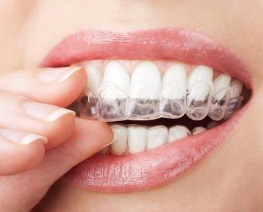 Стоматологія Соболевського - Відбілювання (домашнє)
