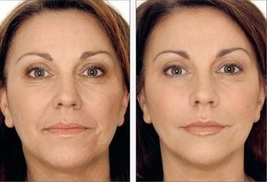 Дар Каліфа, DaySpa - Біоревіталізація обличчя