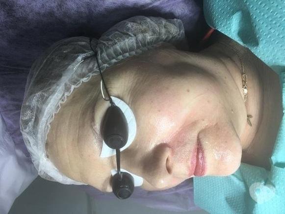 Фото 3 - Celebriti, центр лазерної косметології та корекції фігури - Лазерне омолодження шкіри