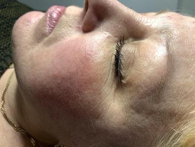 Celebriti, центр лазерної косметології та корекції фігури - Лазерне видалення судинних сіток