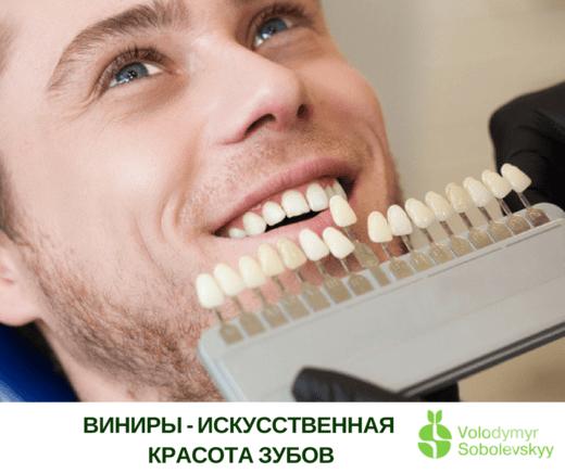 Стоматологія Соболевського - Вініри