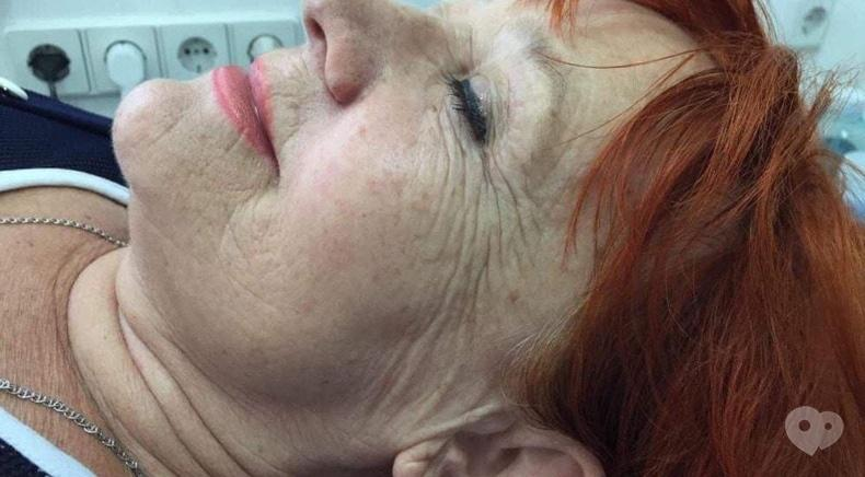 Фото 5 - Celebriti, центр лазерної косметології та корекції фігури - RF LIFTING