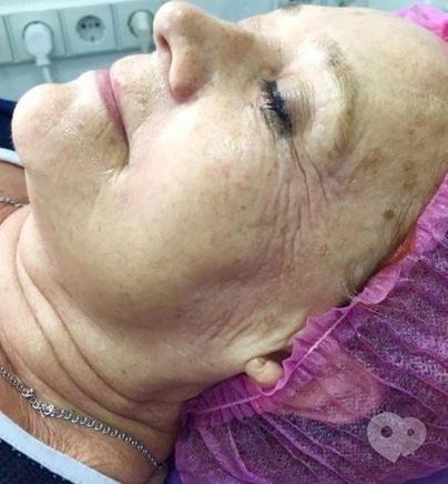 Фото 6 - Celebriti, центр лазерної косметології та корекції фігури - RF LIFTING