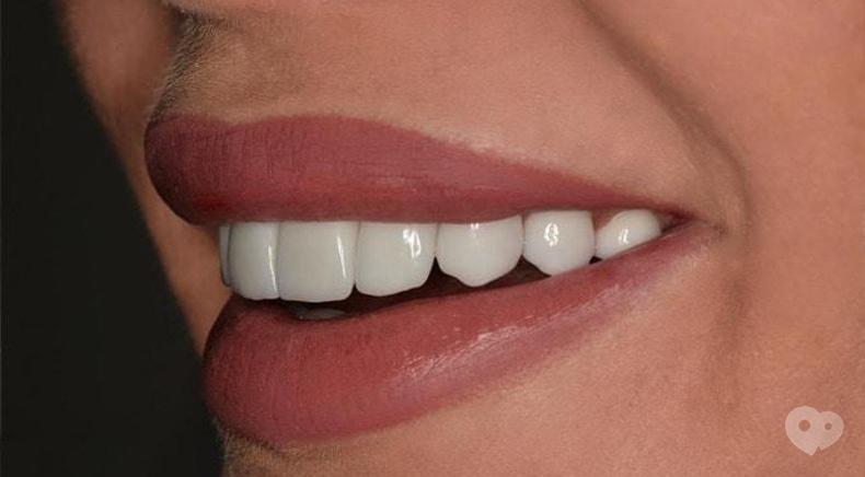 Стомадеус, стоматологическая клиника - Виниры