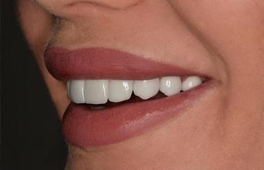 Стомадеус, стоматологічна клініка - Вініри