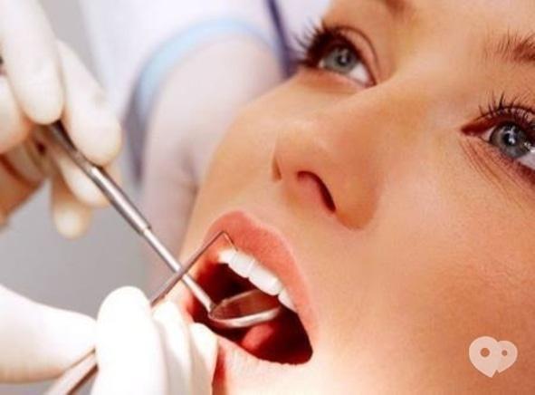 Smileup, стоматология - Снятие зубных отложений ультразвуком