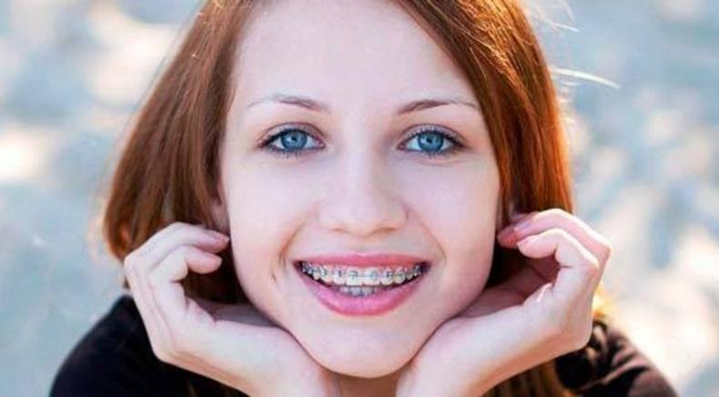 Smileup, стоматология - Металлическая брекет-система полное сопровождение