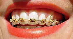 Smileup, стоматология - Золотая брекет-система полное сопровождение