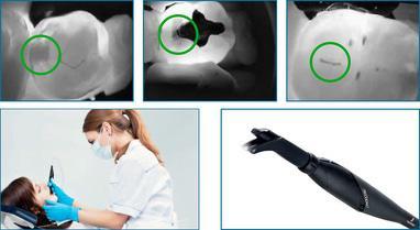 Smileup, стоматология - Лазерная диагностика кариеса DiagnoCam (KaVo)