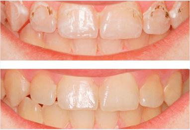 Smileup, стоматологія - ICON лікування карієсу без бору