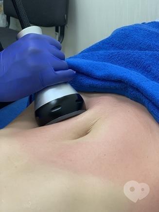 Celebriti, центр лазерної косметології та корекції фігури - VACUUM+RF lifting