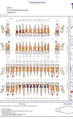 Сучасна Сімейна Стоматологія - Складання пародонтологічної карти