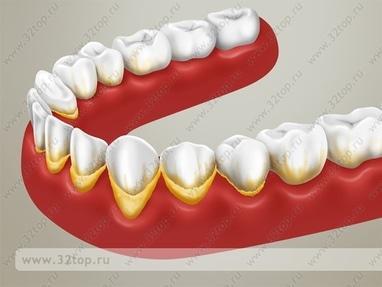 Сучасна Сімейна Стоматологія - Під'ясенний скейлінг