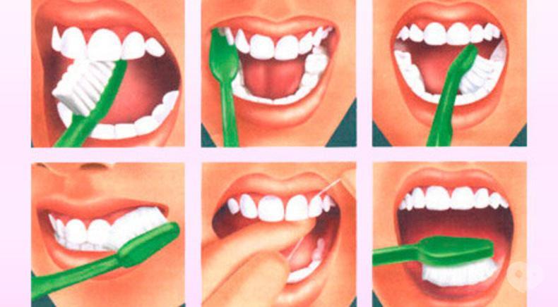 Сучасна Сімейна Стоматологія - Урок гігієни з підбором індивідуальних засобів догляду за ротовою порожниною