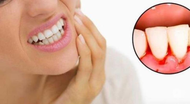 Сучасна Сімейна Стоматологія - Пародонтология и лечение десен