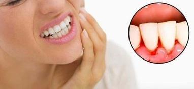 Сучасна Сімейна Стоматологія - Пародонтологія та лікування ясен