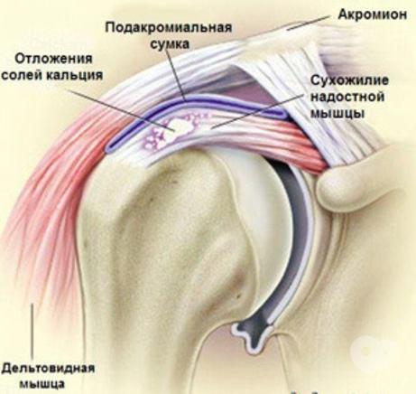 Ocsarat Medical, медицинский центр - Лечение кальцинирующего тендинита плеча