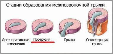 Ocsarat Medical, медичний центр - Протрузії міжхребцевих дисків