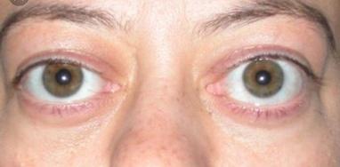 Ірмед, Медичний центр - Лікування офтальмологічних проявів хвороби Грейвса (ендокринної орбітопатії)