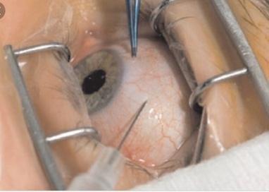 Приватний офтальмолог Медведчук С.П., Ретинолог, лазерний хірург - Інтравітреальне введення медикаментів