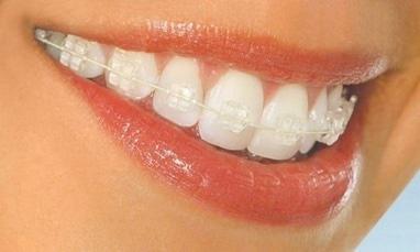 Smileup, стоматология - Сапфировая брекет система полное сопровождение
