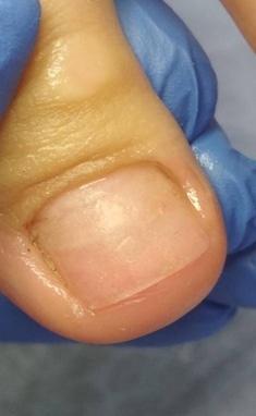 Здорові стопи, Центр педикюру і Подології - Протезування нігтів