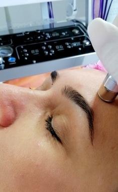 Косметологічний центр АЛІР, косметологія обличчя та тіла - Діамантова мікродермабразія (механічний пілінг)