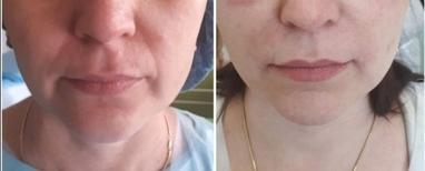 Косметологічний центр АЛІР, косметологія обличчя та тіла - Корекція носогубних складок