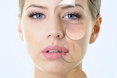 My SeCreT, LPG масаж, лазерна епіляція - Лазерне омолодження обличчя і тіла