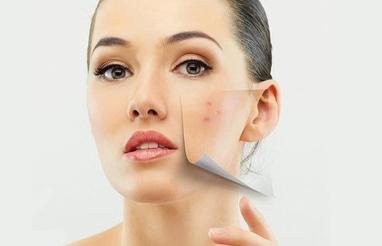 My SeCreT, LPG масаж, лазерна епіляція - Лазерне лікування акне на обличчі