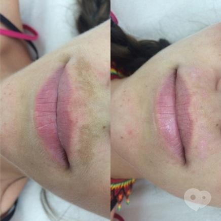 Фото 2 - Celebriti, центр лазерної косметології та корекції фігури - Лазерне видалення пігменту