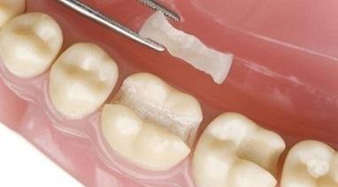 Стомадеус, стоматологічна клініка - Керамічна вкладка