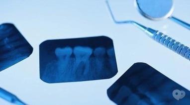 Стомадеус, стоматологічна клініка - Рентген знімок