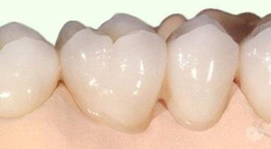 Стомадеус, стоматологічна клініка - Цільнокерамічна коронка на оксиді цирконію