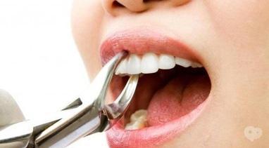 Стомадеус, стоматологічна клініка - Видалення зубів