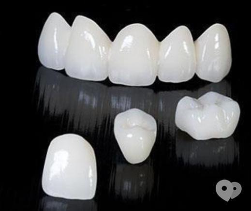Стомадеус, стоматологическая клиника - Металлокерамическая коронка