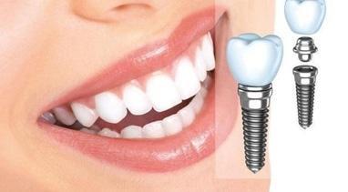 Стомадеус, стоматологическая клиника - Установка импланта
