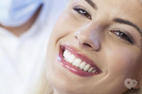 """Акція – Спеціальна ціна на вініри в стоматології """"Джулія"""""""
