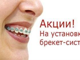 """Металлические брекеты по суперцене в """"Назария"""""""