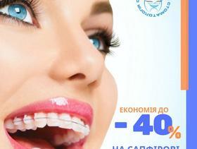 """Спецціна на сапфірові брекети від """"Сучасна Сімейна Стоматологія"""""""